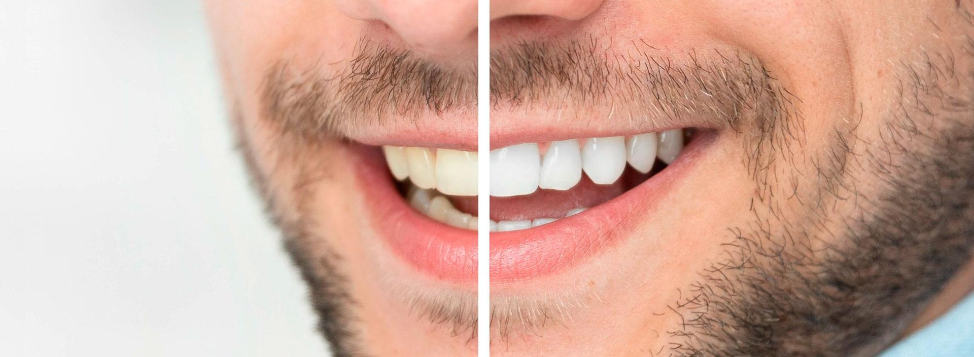 Blanqueamiento dental en Elda y Petrer, Clínica dental Comisura